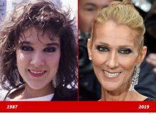 Celine Dion - Good Genes o Good Docs?!